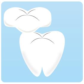 足立区綾瀬の歯医者 新井歯科医院 つめ物をを白くしたい