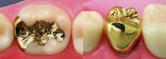 足立区綾瀬の歯医者 新井歯科医院 ゴールド(18K)インレー、クラウン