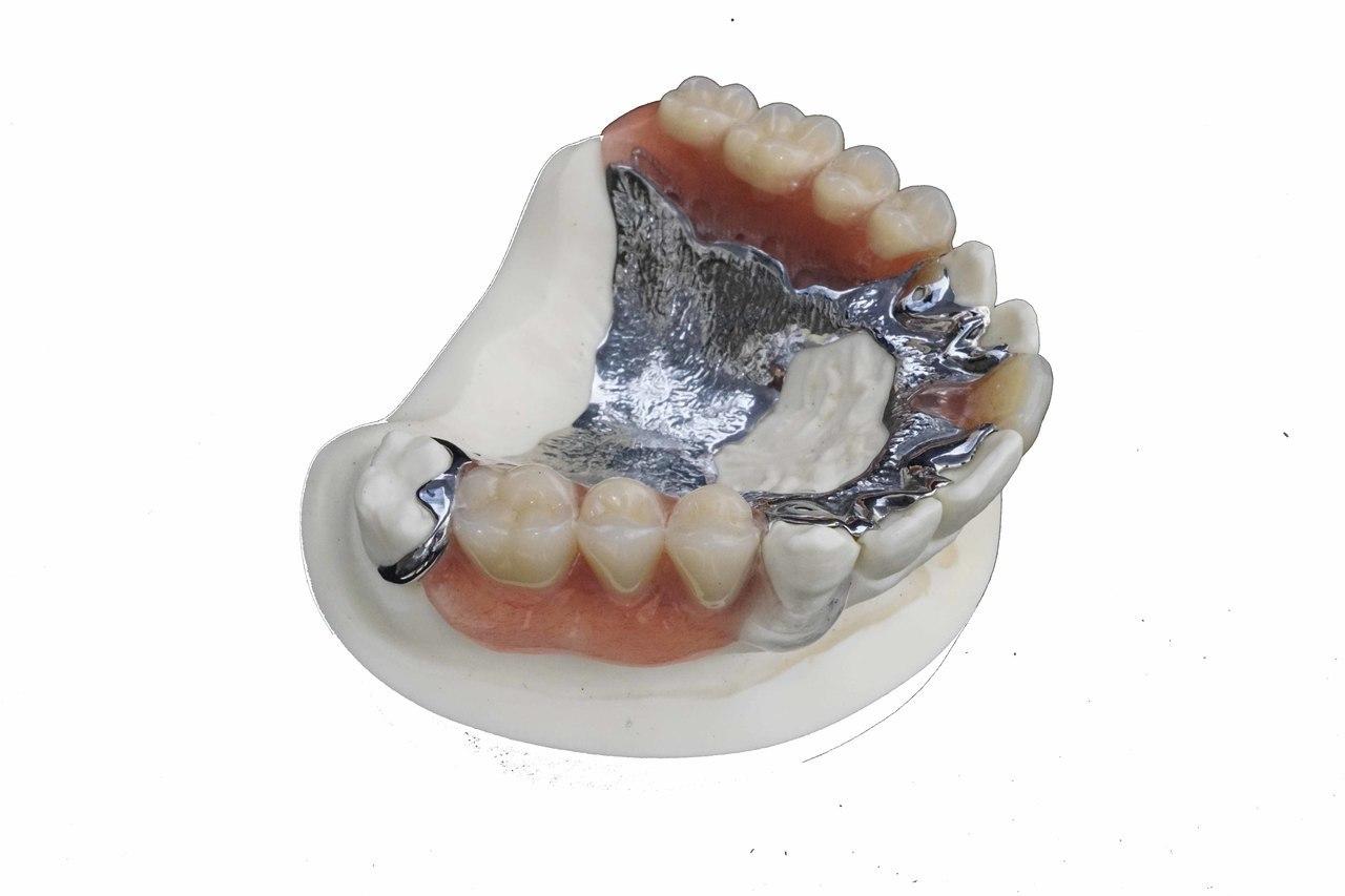 足立区綾瀬の歯医者 新井歯科医院 チタン床義歯