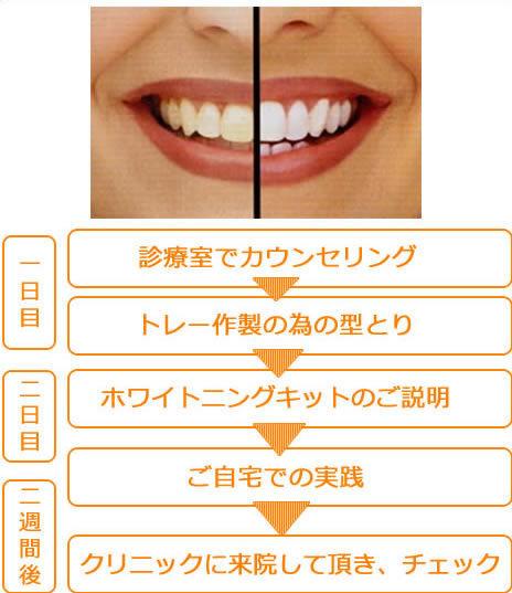 足立区綾瀬の歯医者 新井歯科医院 ホワイトニング